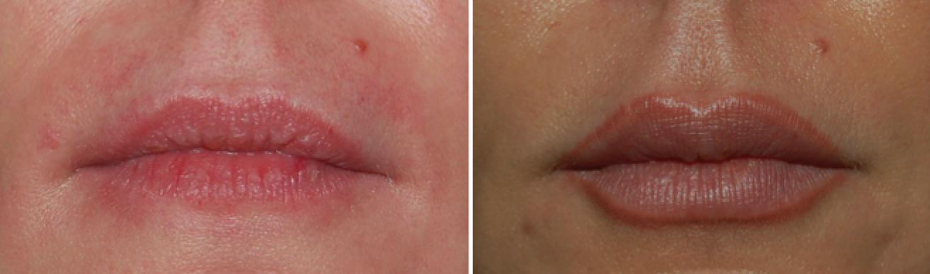 Lèvres rouges injection